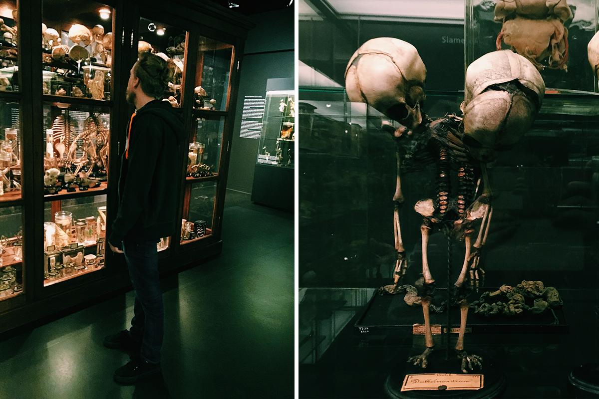 amsterdam vrolik museum